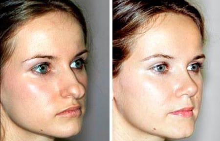 """Каждая девушка будет иметь идеальный кончик носа благодаря клинике """"Fantasticnos"""""""