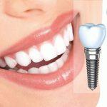Надежная и быстрая имплантация зубов в клинике «А-ПЛОМБ»